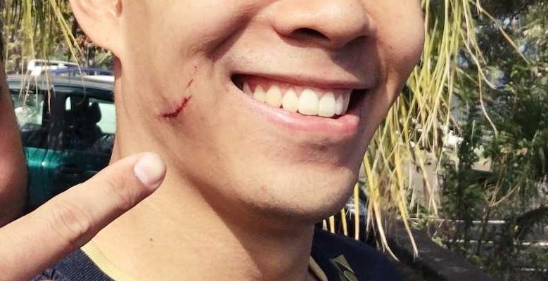 Cicatrice 2